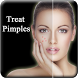 Pimple Remove in 7 Days by Super Kool Apps