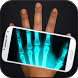 Xray Scanner Prank by porrassoft