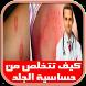 علاج حساسية الجلد اكزيما by YOKIDS GAMES