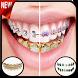 Gold Teeth & Braces photo editor by Bolbol Apps