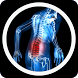 Sciatica Treatment & Symptoms by Glover Sacenri