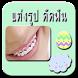 แต่งรูปดัดฟัน จัดฟัน by srinoun app