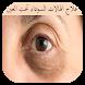 علاج الهالات السوداء تحت العين by Paul Freeh