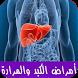 أمراض الكبد والمرارة وعلاجها by abdo.apps