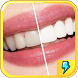 Teeth Whitening Secret Tips by Fun maker