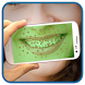 Teeth Bacteria Scanner Prank
