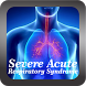 Severe Acute Respiratory Syndrome by Ulfah