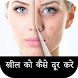 How to remove Pimple from Face