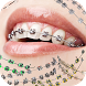 Braces on teeth Photo editor by ASIOK entertainment