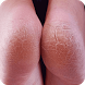 Get Rid of Cracked Heels by StatesApps