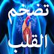تضخم القلب وأعراضه by OUBA APPS