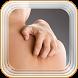 Itchy Skin Disease & Symptoms by mAppsGuru