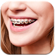 Real Braces teeth Camer Booth by goldfishyofdeve