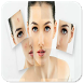How to Get Rid of Acne by martinandoapp