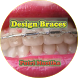 Design of Braces by Putri Mustika