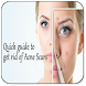 Get Rid of Acne Scars by martinandoapp
