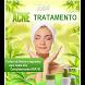Tratamento da Acne e Espinhas by i3portugal