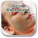 Acne Removal Guide by innovation_pioneer
