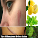 Tips to Eliminate Scars by rondiahndroid