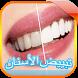 وصفات تبييض الأسنان بدون نت by GeekToro