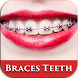 Beauty Brace Teeth Camera by Latest App Studio