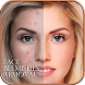 Face Blemishes Removal by Lokanath P
