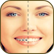 Braces Fake Booth Sticker by niceapp-4you