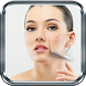 Acne No Mas by ApptualizaME