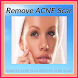 Remove Acne Scar by nanzydesign