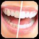 تبييض الأسنان بطرق طبيعية by NadMed
