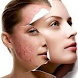 Acne How To Remove Acne Nature