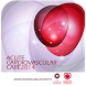 Acute 2014 by European Society of Cardiology