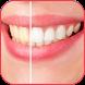 تبييض الاسنان طبيعيا by devlopper-app-free