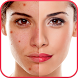 Blemishes Remover You Makeup by Pinkbird Studio