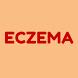 Eczema by MMI
