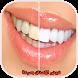 تبيض الاسنان بسرعة by sfakanzi app