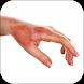 العلاجات المنزلية للجلد المحترق by Remedies