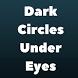 DARK CIRCLES UNDER EYES by LeansPixel