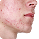 Acné síntomas tratamiento y prevención by itaQppa