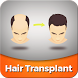 Hair Transplant by Polaris Authorizations