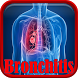 Bronchitis Infection by Droid Clinic