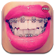 Top Design Braces teeth by Mix Keyboard HD