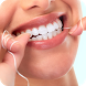 Caries dental causas sintomas y tratamiento by itaQppa