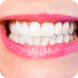 How to Whiten Teeth Instantly by StatesApps