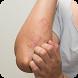 Consejos naturales para tratar el eczema