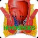 Hemorrhoids Disease