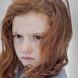 ঘরোয়া উপায়ে দূর হবে মেছতা - Freckles home remedies
