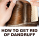 How To Get Rid Of Dandruff by TNAPPS