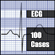 ECG 100 Clinical Cases by FreeTheDoctor