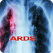 Acute Respiratory Distress Syndrom by bedieman